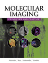 Molecular imaging principles and practice