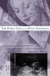 The public life of the fetal sonogram technology, consumption, and the politics of reproduction